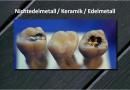Zahnersatz: Kronen und Brücken