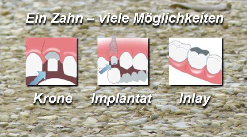 Gesundheitliche Folgen durch Zahnerkrankungen